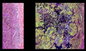 Layer of human tissue under a microscope and a satellite image of the Everglades